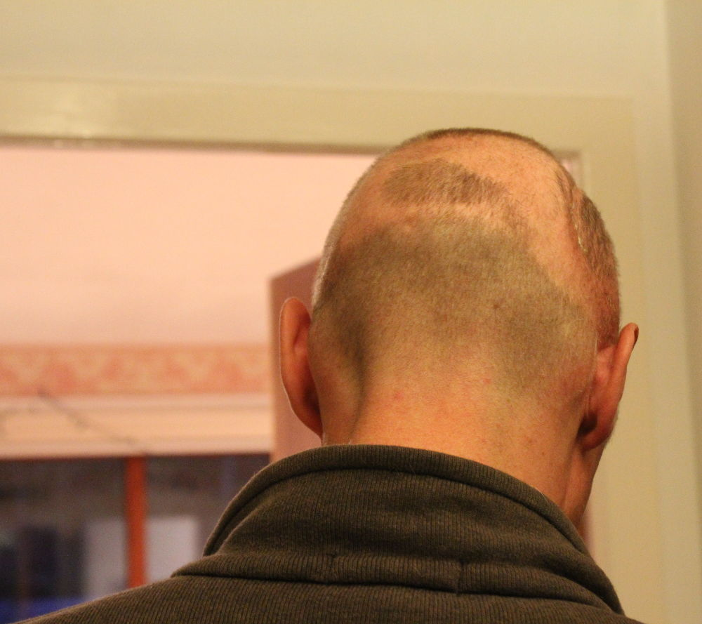 Staples removed and no hair