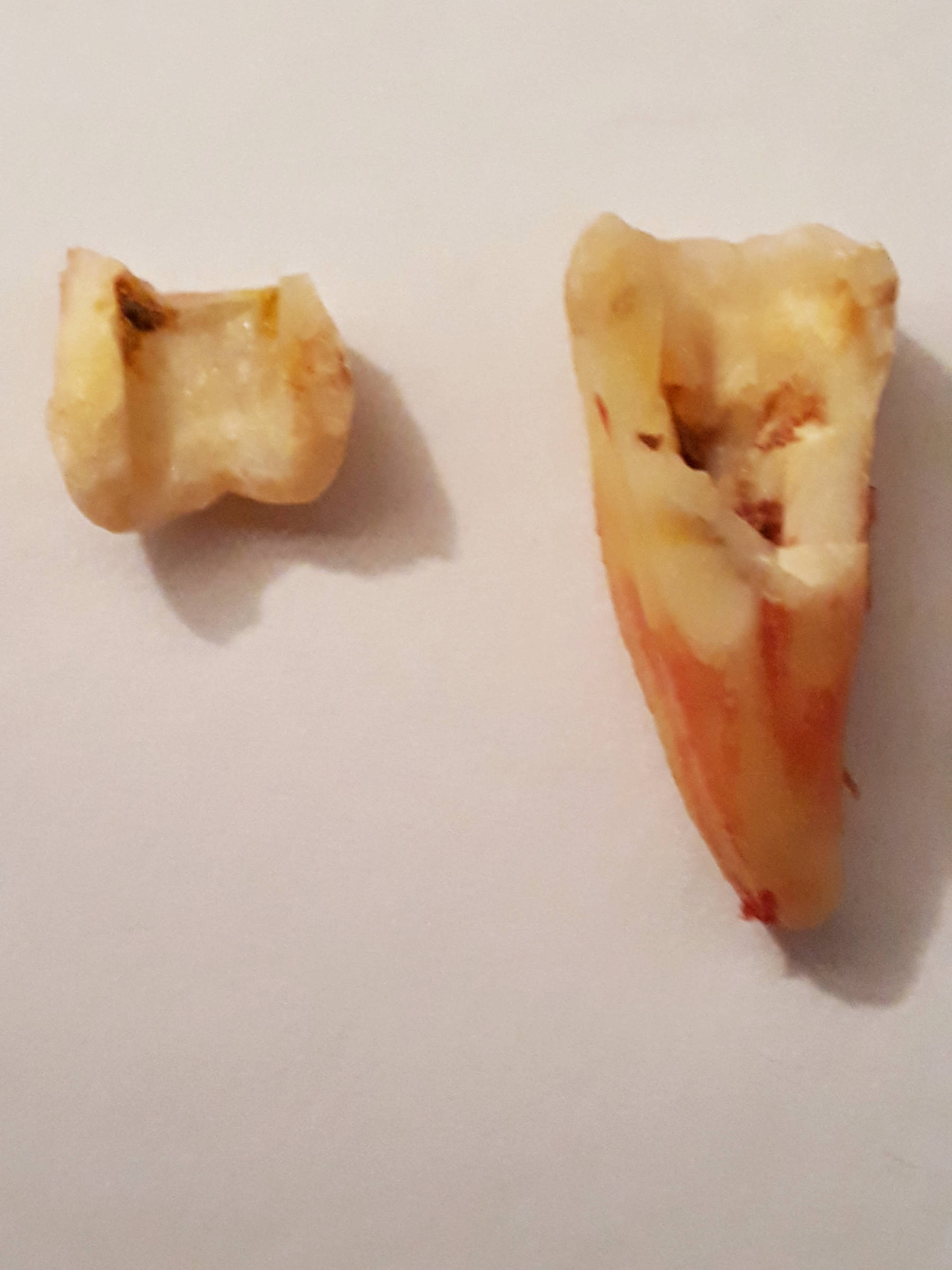 Tooth Post Extraction